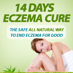 14 Days Eczema Cure Review