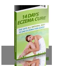 14 days eczema cure review,treating your eczema