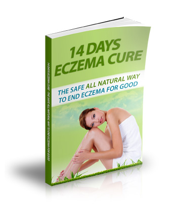 review of the 14 days eczema cure guide,Janet Simpson